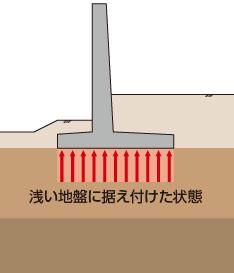"""フーチング構造(""""総入れ歯""""形式)"""